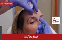 تزریق بوتاکس | فیلم تزریق بوتاکس | کلینیک پوست و مو هلیا | شماره 16