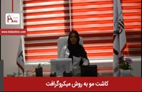 کاشت مو به روش میکروگرافت در ایران | کلینیک هلیا | ۰۲۱۲۲۸۱۹۴۱۸
