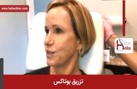 تزریق بوتاکس | فیلم تزریق بوتاکس | کلینیک پوست و مو هلیا | شماره 22