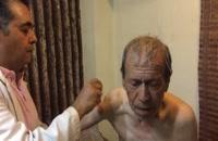 درمان فلج اندام با طب سوزنی