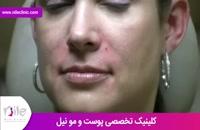 تزریق ژل | فیلم تزریق ژل | کلینیک پوست و مو نیل | شماره 16