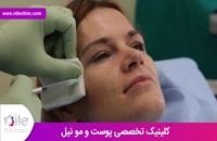 تزریق بوتاکس | فیلم تزریق بوتاکس | کلینیک پوست و مو نیل | شماره 25