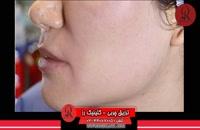تزریق چربی | فیلم تزریق چربی | کلینیک پوست و مو رز | شماره 54