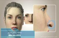 جراحی بینی یا عمل بینی ( رینوپلاستی Rhinoplasty ) زیبایی سنتر
