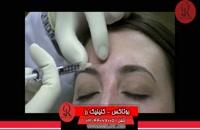 تزریق بوتاکس | فیلم تزریق بوتاکس | کلینیک پوست و مو رز | شماره 35