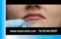 تزریق ژل | فیلم تزریق ژل | کلینیک پوست و مو مارال | شماره 8
