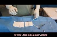 درمان بواسیر یا هموروئید با اسکلروتراپی