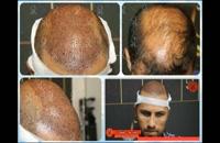 کاشت مو   فیلم کاشت مو   کلینیک پوست و مو رز   شماره 39