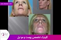 تزریق چربی | فیلم تزریق چربی | کلینیک پوست و مو نیل | شماره 10