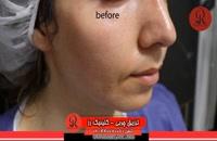 تزریق چربی | فیلم تزریق چربی | کلینیک پوست و مو رز | شماره 67