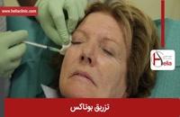 تزریق بوتاکس | فیلم تزریق بوتاکس | کلینیک پوست و مو هلیا | شماره 14
