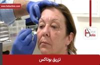 تزریق بوتاکس | فیلم تزریق بوتاکس | کلینیک پوست و مو هلیا | شماره 17