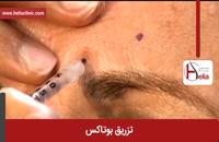 تزریق بوتاکس | فیلم تزریق بوتاکس | کلینیک پوست و مو هلیا | شماره 15