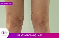 تزریق چربی | فیلم تزریق چربی | کلینیک پوست و مو نیل | شماره 11