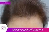 کاشت مو | فیلم کاشت مو | کلینیک پوست و مو نیل | شماره 14