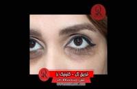 تزریق ژل | فیلم تزریق ژل | کلینیک پوست و مو رز | شماره 62